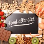 Sign that says food allergies surrounded by food