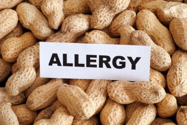 The word Allergy on top of peanuts